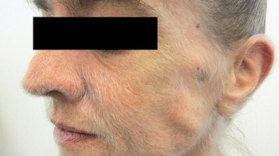 Лицо австралийки покрылось шерстью из-за многолетнего курения