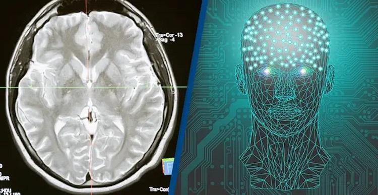 Впервые в истории человеческий мозг подключили к компьютеру по беспроводной сети
