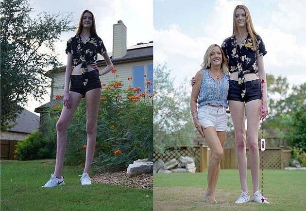 Девушка c самыми длинными ногами на планете попала в книгу рекордов Гиннесса