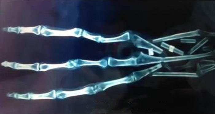 Найдена рука пришельца? (2 фото + видео)