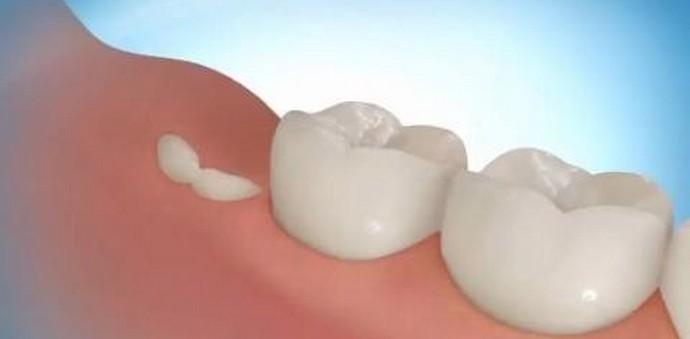 Чтобы зубы выросли в третий раз, нужен им приказ