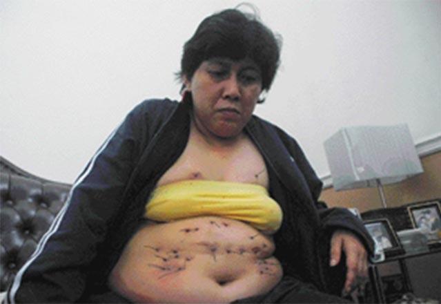 Из тела женщины растет металлическая проволока