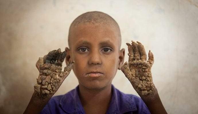 Бангладешский мальчик превращается в дерево