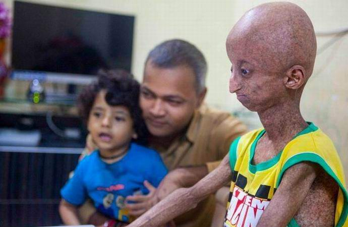 Редкий недуг превратил подростка в подобие пришельца (2 фото)