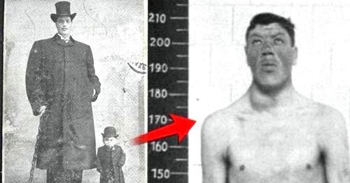 Адам Райнер - карлик и великан в одном лице
