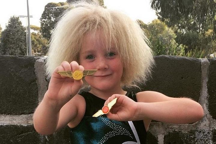 10-летняя австралийка с аномальной структурой волос прославилась в сети